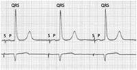 Trouble de la conduction, pacemaker